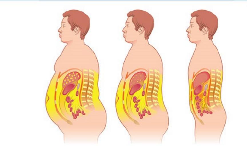 grasso prominente