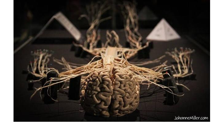 Sistema nervoso plastinazione
