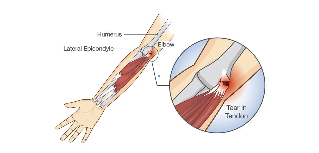 strappo muscolare legamento