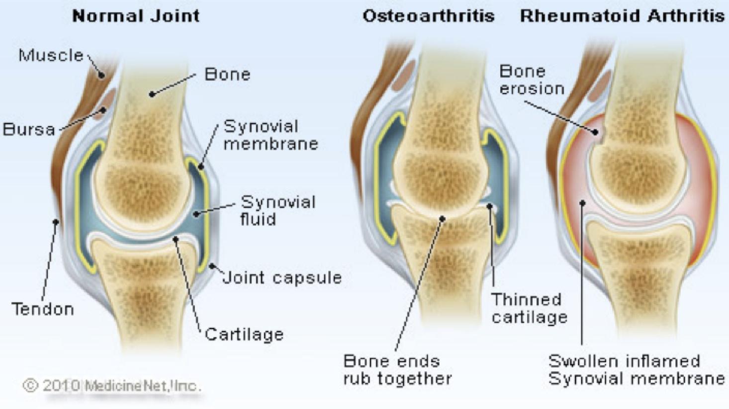 riduzione cartilagine articolare