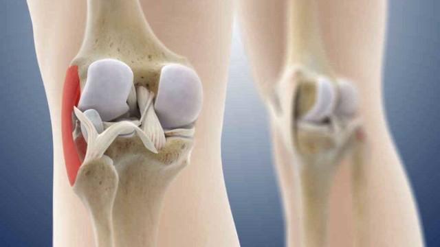 Esercizio fisico e cartilagini articolari