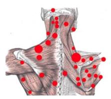 Trigger point schiena