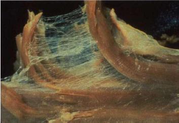 La miofascia- verso una visione olistica del corpo umano