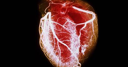 Corsa e malattie cardiovascolari