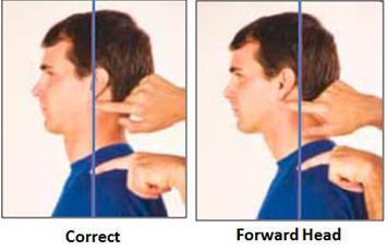 Allineamento cervicale