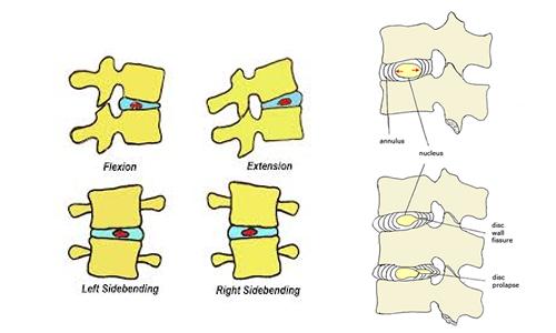 Movimento nucleo polposo disco vertebrale