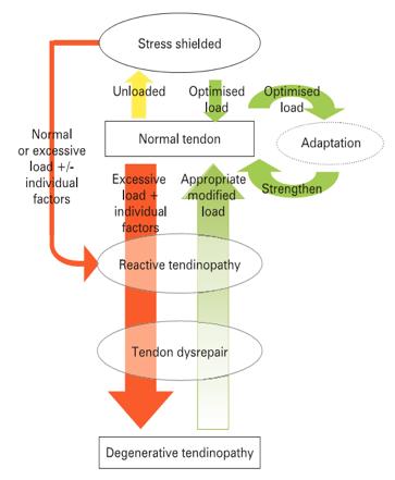 Degenerazioni tendinopatia