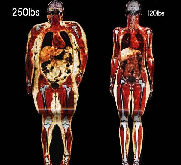 dieta chetogenica perché non dimagrisco