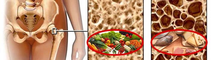 Dieta alcalina e osteoporosi
