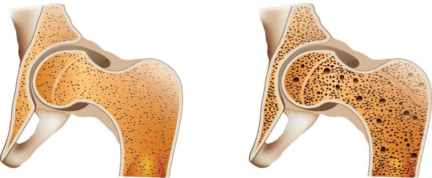 cibi acidi osteoporosi