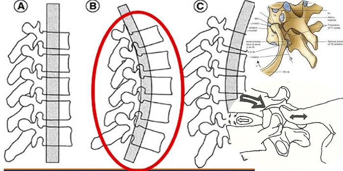 Estensione tratto dorsale