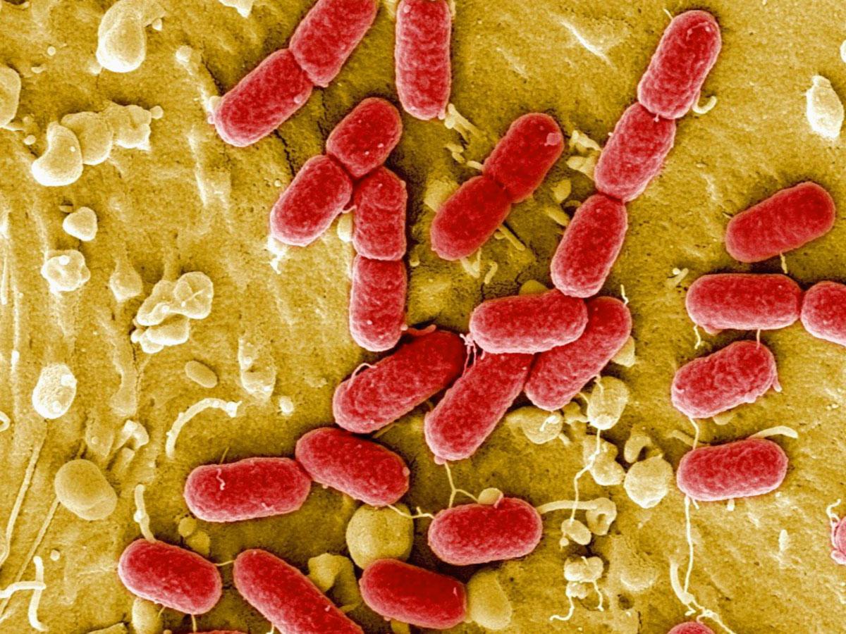 batteri-al-microscopio