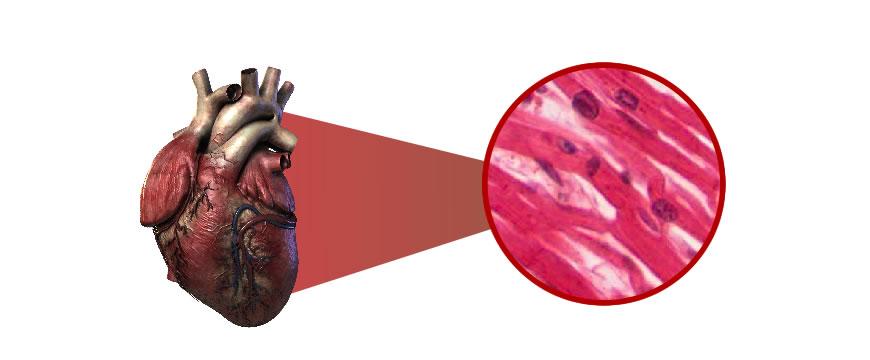 tessuto miocardico