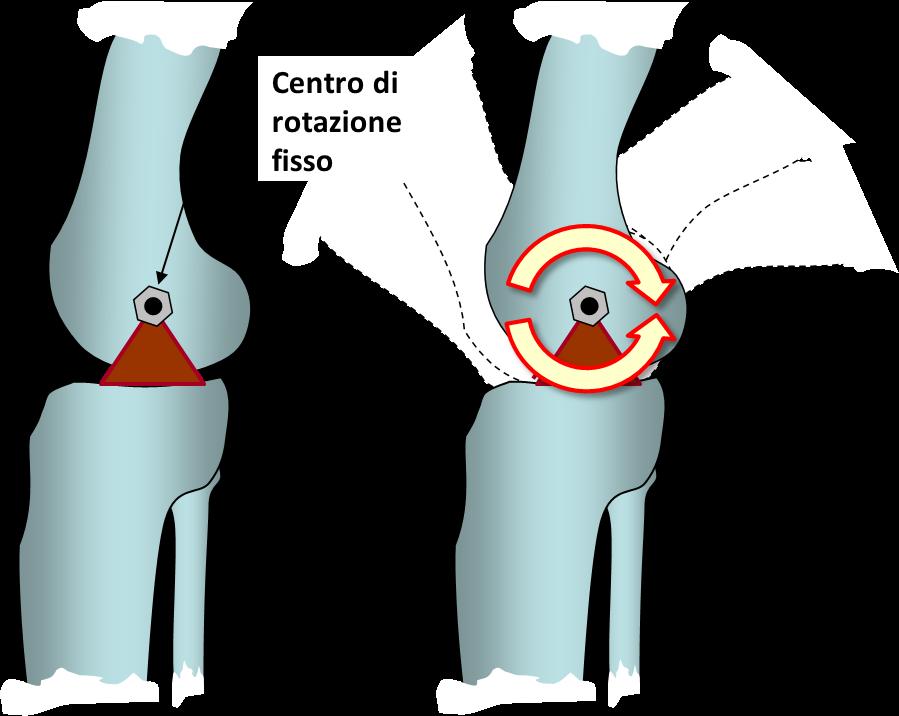centro di perdita di peso conway schiacciate