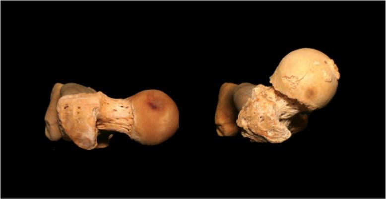 Angolazione coxo-femorale squat