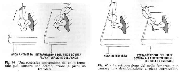 Piede e posizione del bacino