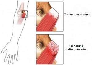 Epicondilite epitrocleite