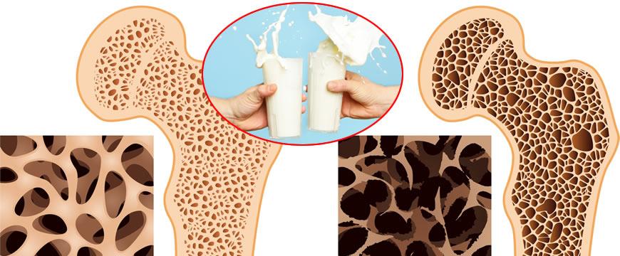 latte osteoporosi