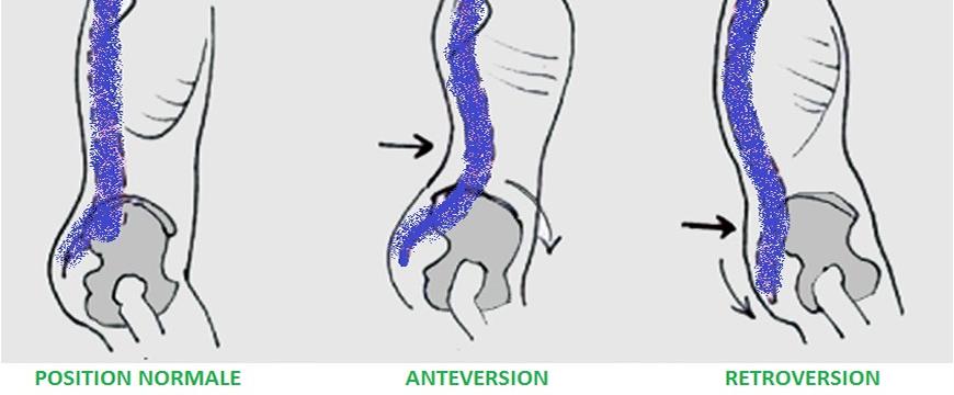 antiversione retroversione bacino