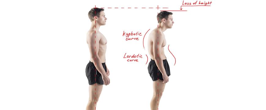 postura cifotica