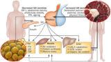 GH e composizione corporea