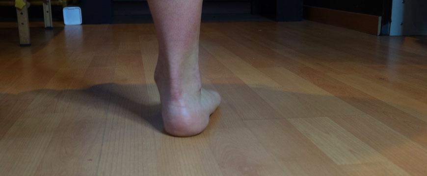 piede pronato