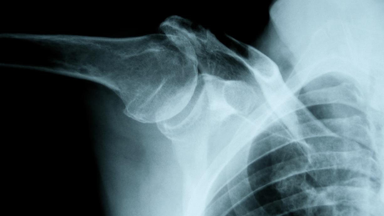 dislocazione spalla