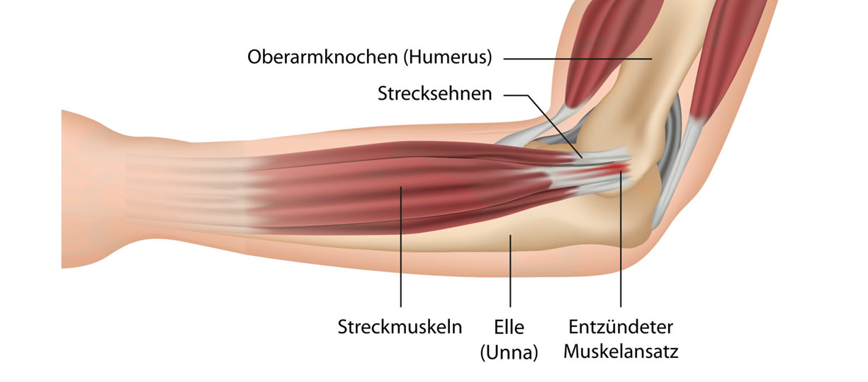 dolore al gomito epicondilite