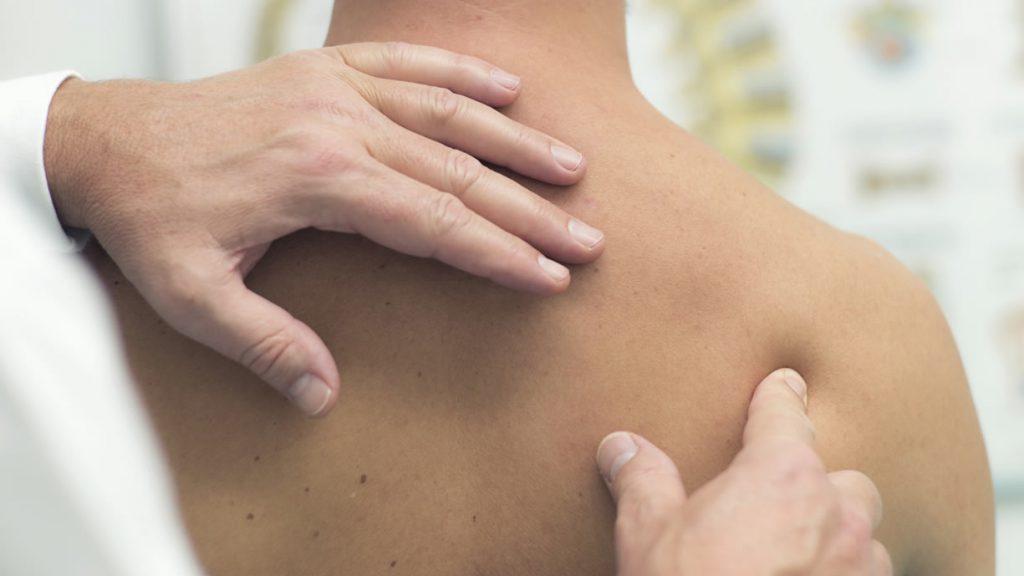 periartrite spalla