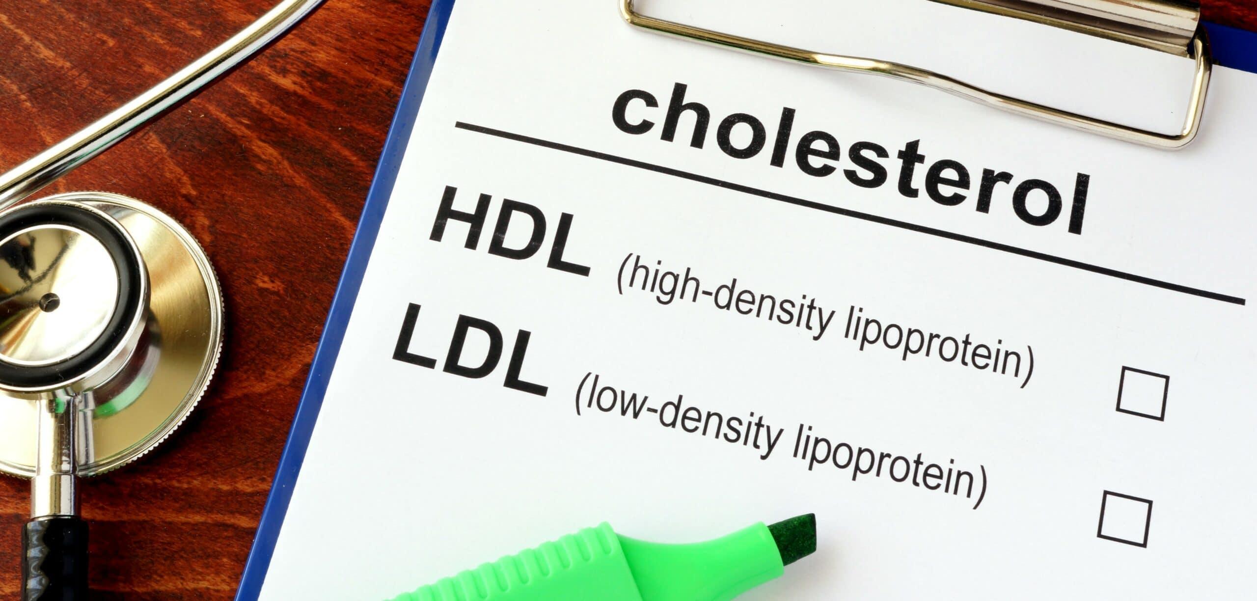 taurina e colesterolo