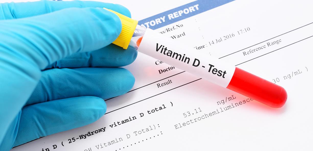 test vitamina D