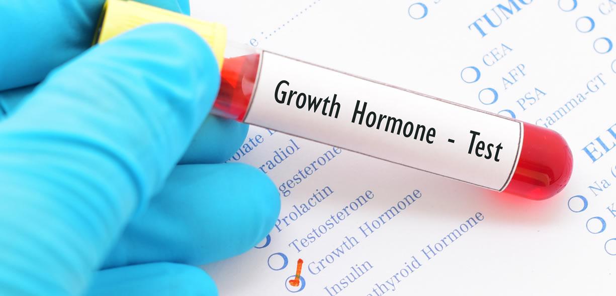 esami edl sangue ormone della crescita