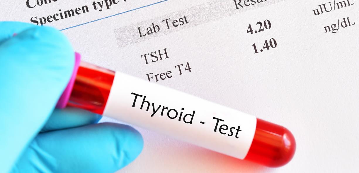 valori ormoni tiroidei