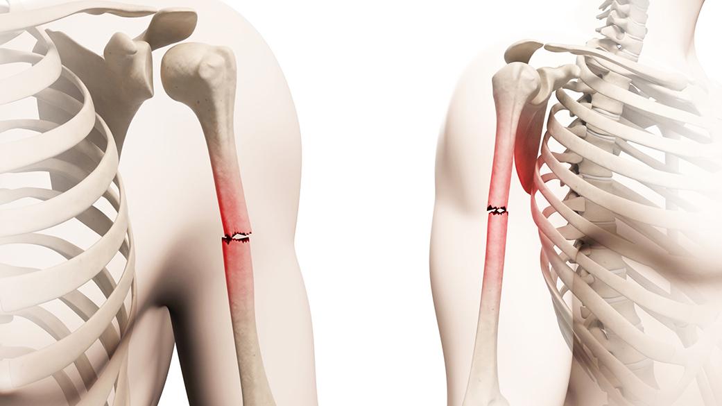 frattura dell'osso omero