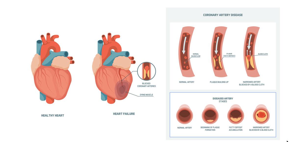 Rischi colesterolo alto