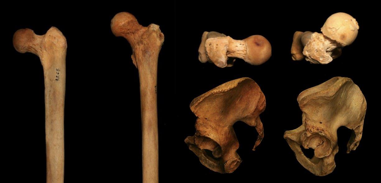 Differenze anatomiche femore anca