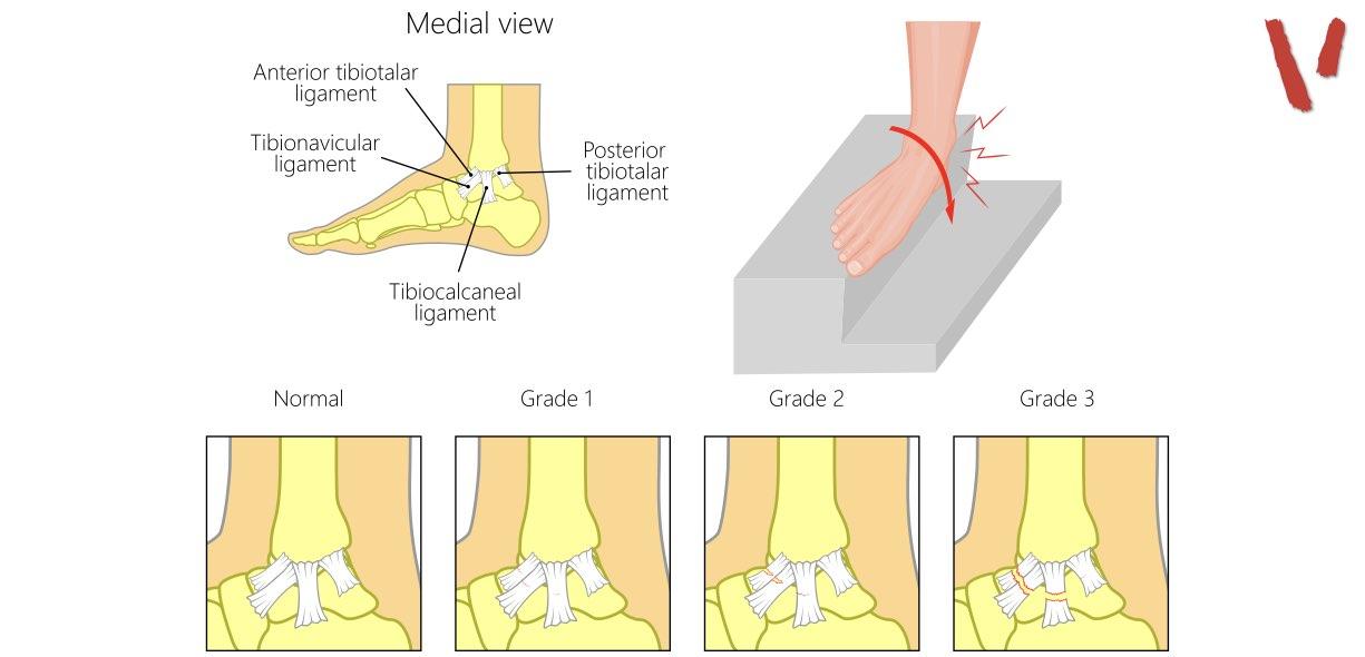 Distorsione caviglia eversione