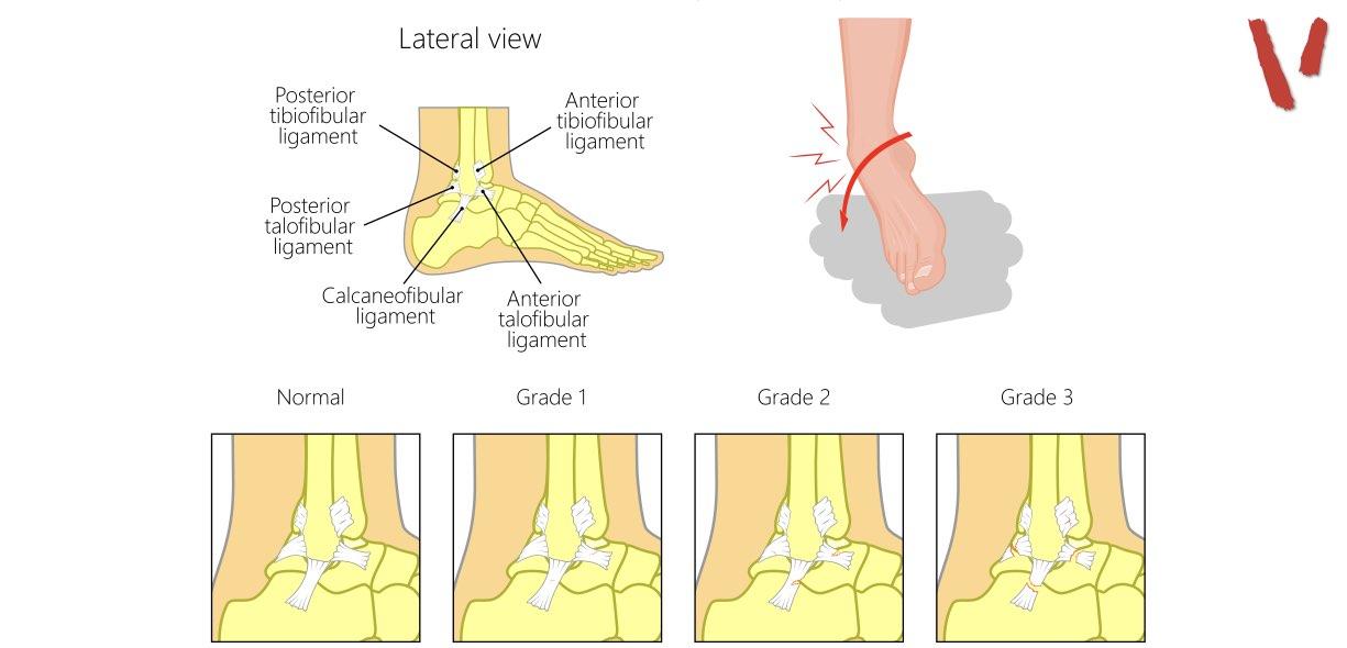 Distorsione caviglia inversione