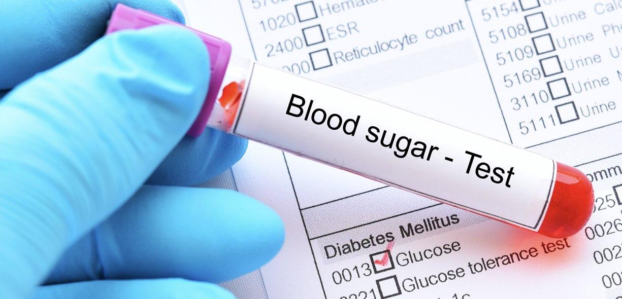 glucosio e glicemia