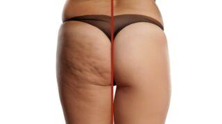 Cellulite cause e rimedi efficaci