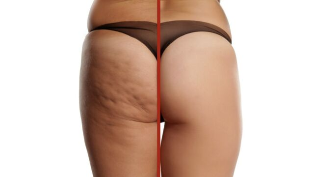 Cellulite cause e rimedi efficaci