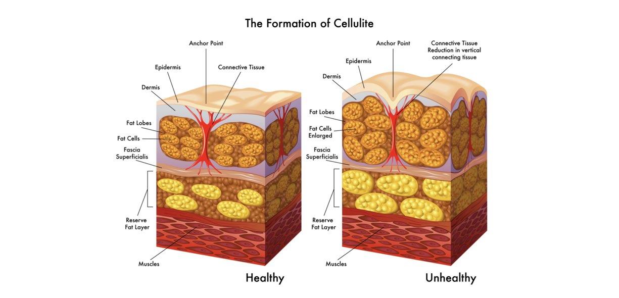 Stadi cellulite