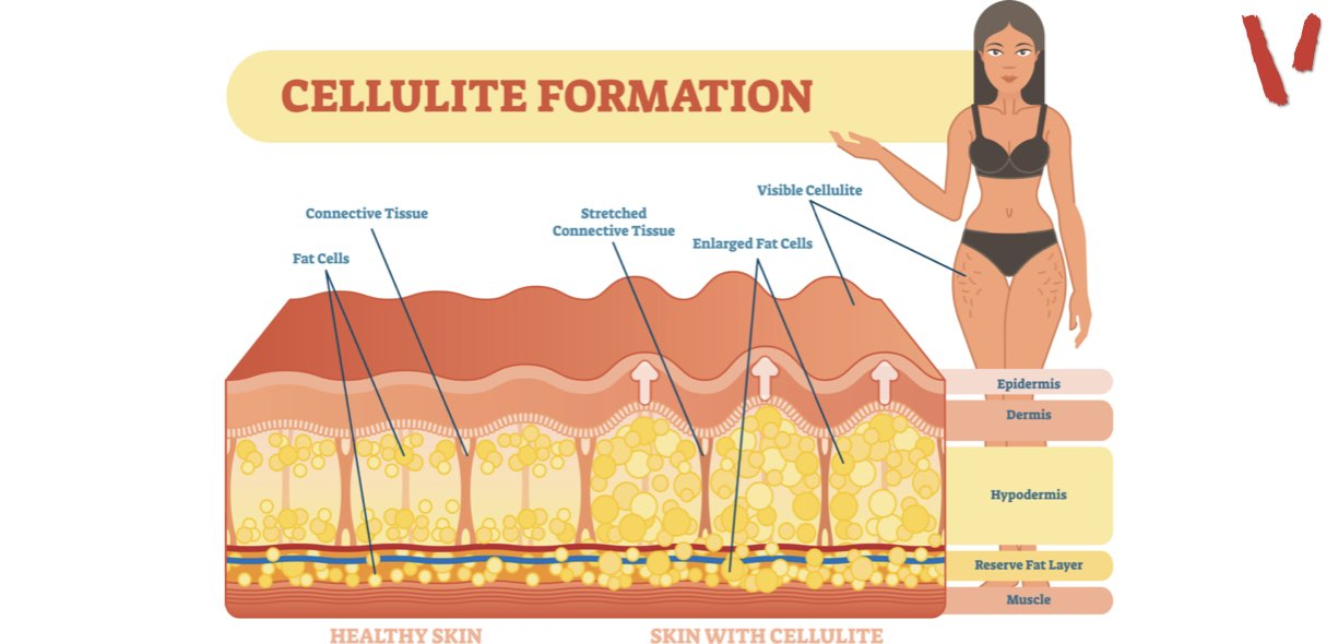 come si forma la cellulite