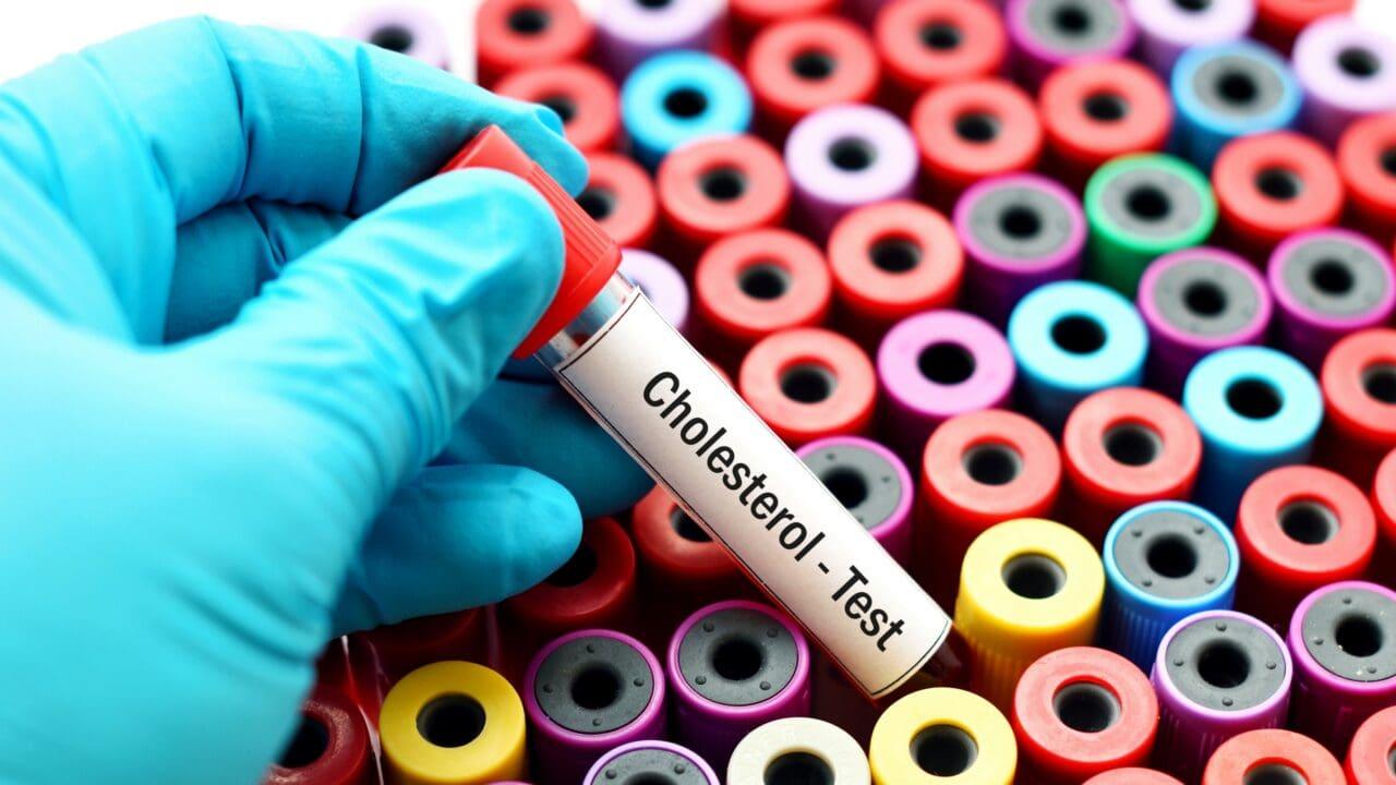 colesterolo buono hdl e cattivo ldl